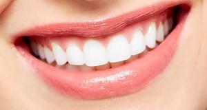 Hoe Gebleekte Tanden Wit Houden