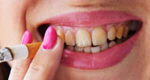 gele tanden door het roken