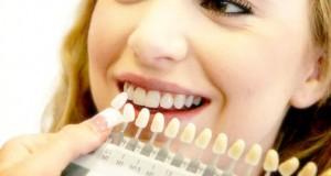 welke tandenbleek methodes zijn er
