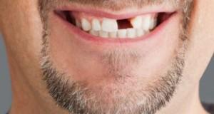 tanden bleken fabels