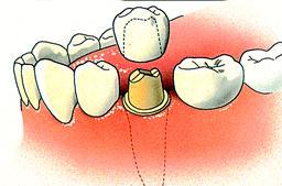 Kroon, een kapje over een tand of kies